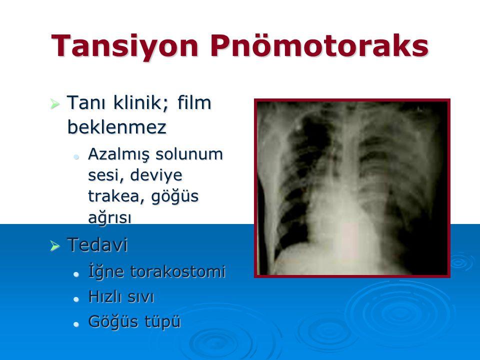 Tansiyon Pnömotoraks  Tanı klinik; film beklenmez Azalmış solunum sesi, deviye trakea, göğüs ağrısı Azalmış solunum sesi, deviye trakea, göğüs ağrısı