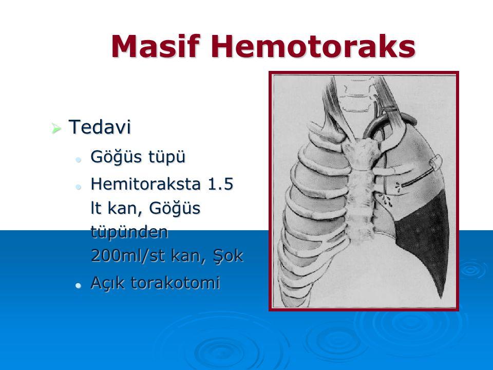 Masif Hemotoraks  Tedavi Göğüs tüpü Göğüs tüpü Hemitoraksta 1.5 lt kan, Göğüs tüpünden 200ml/st kan, Şok Hemitoraksta 1.5 lt kan, Göğüs tüpünden 200m