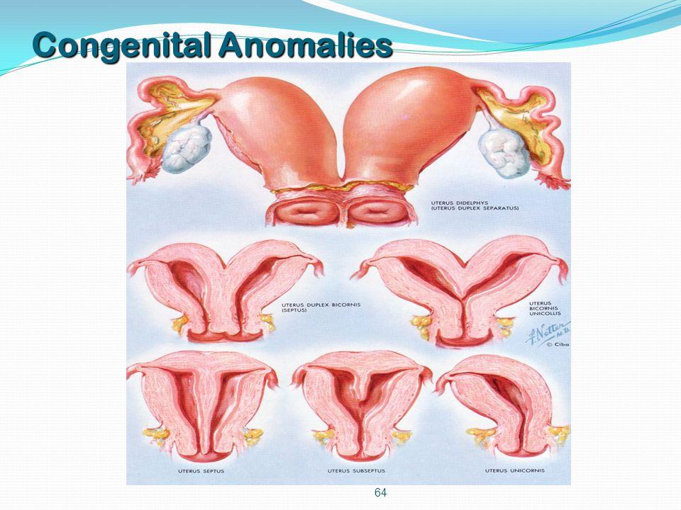 64 Congenital Anomalies