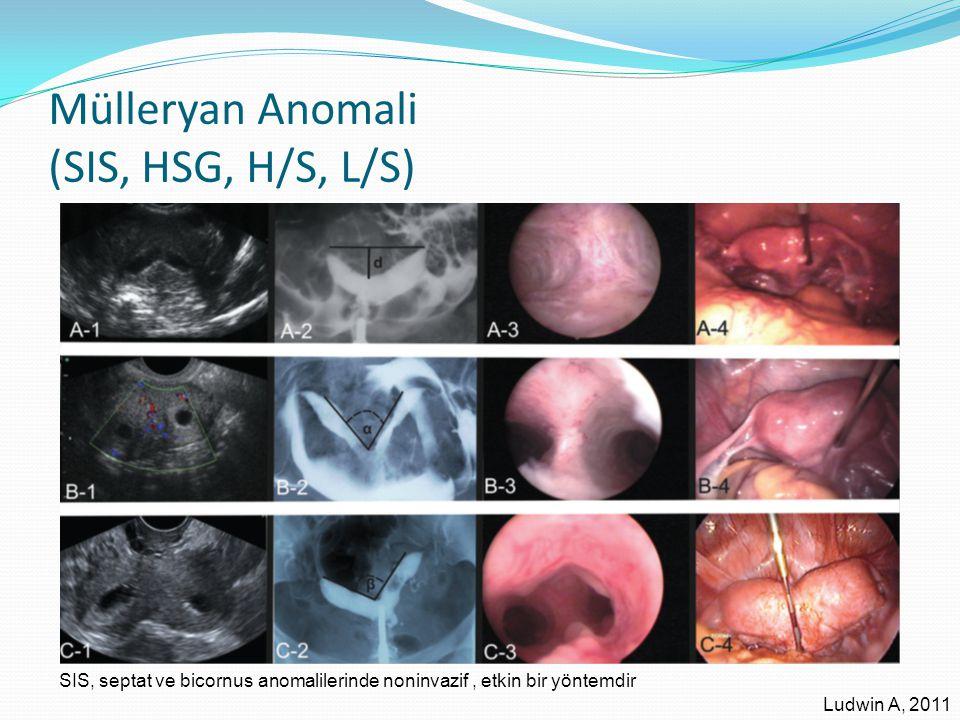 Mülleryan Anomali (SIS, HSG, H/S, L/S) Ludwin A, 2011 SIS, septat ve bicornus anomalilerinde noninvazif, etkin bir yöntemdir