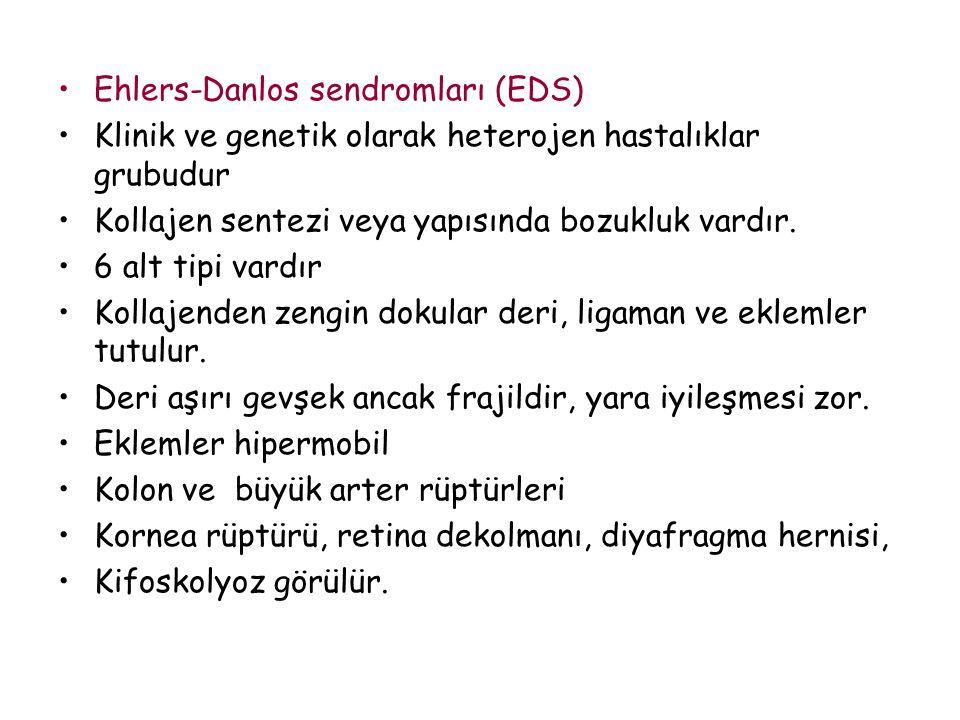 Ehlers-Danlos sendromları (EDS) Klinik ve genetik olarak heterojen hastalıklar grubudur Kollajen sentezi veya yapısında bozukluk vardır. 6 alt tipi va