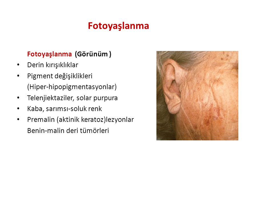 Fotoyaşlanma Fotoyaşlanma (Görünüm ) Derin kırışıklıklar Pigment değişiklikleri (Hiper-hipopigmentasyonlar) Telenjiektaziler, solar purpura Kaba, sarımsı-soluk renk Premalin (aktinik keratoz)lezyonlar Benin-malin deri tümörleri