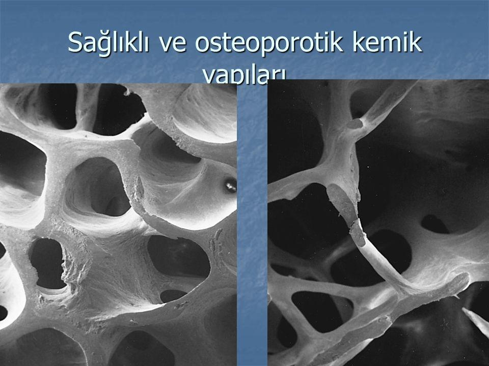 Sağlıklı ve osteoporotik kemik yapıları