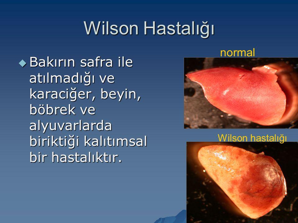 Wilson Hastalığı  Bakırın safra ile atılmadığı ve karaciğer, beyin, böbrek ve alyuvarlarda biriktiği kalıtımsal bir hastalıktır. normal Wilson hastal
