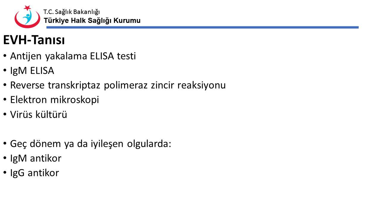T.C. Sağlık Bakanlığı Türkiye Halk Sağlığı Kurumu T.C. Sağlık Bakanlığı Türkiye Halk Sağlığı Kurumu EVH-Tanısı Antijen yakalama ELISA testi IgM ELISA