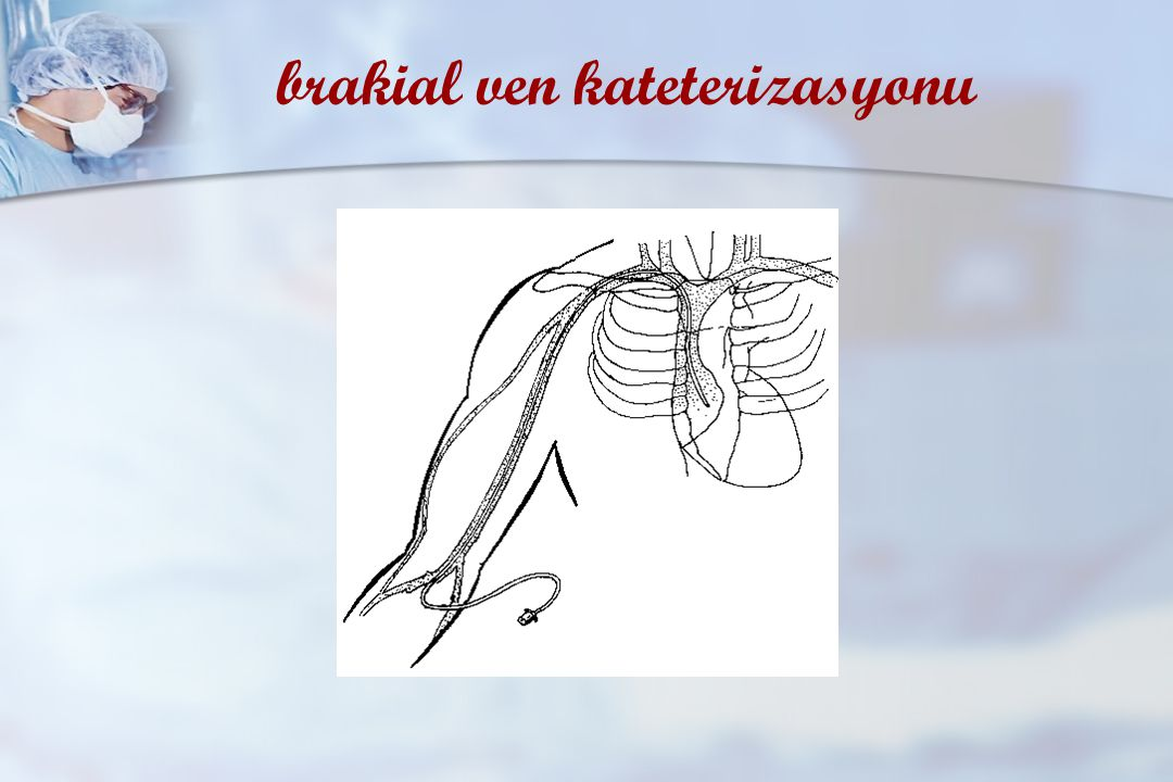 subklavyen ven kateterizasyonu