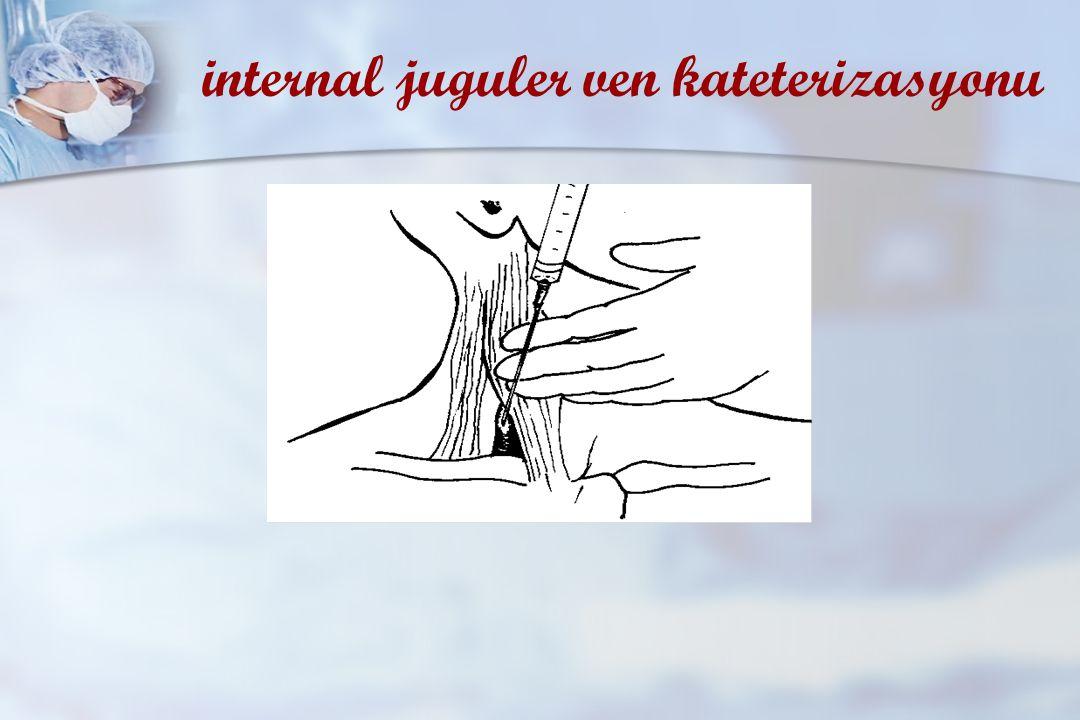 internal juguler ven kateterizasyonu