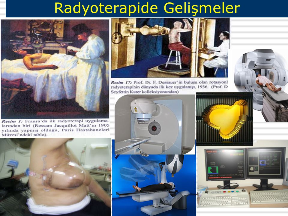 Meme Kanserinde Radyoterapi CLINICAL JOURNAL OF ONCOLOGY NURSING VOLUME 7, NUMBER 6 ADVANCES IN RADIATION TREATMENT OF PATIENTS WITH BREAST CANCER NOVEMBER/DECEMBER 2003 Eksternal Radyoterapi Brakiterapi Mamosite