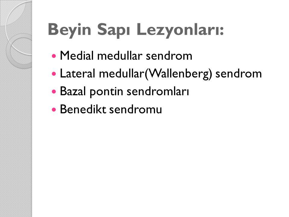 Beyin Sapı Lezyonları: Medial medullar sendrom Lateral medullar(Wallenberg) sendrom Bazal pontin sendromları Benedikt sendromu