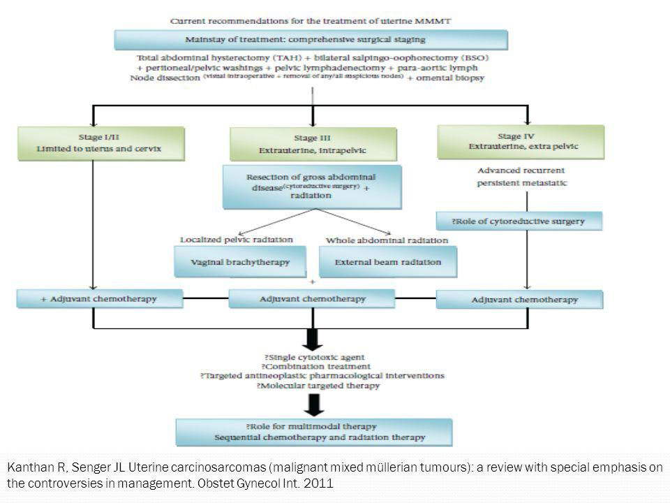 Kanthan R, Senger JL Uterine carcinosarcomas (malignant mixed müllerian tumours): a review with special emphasis on the controversies in management. O