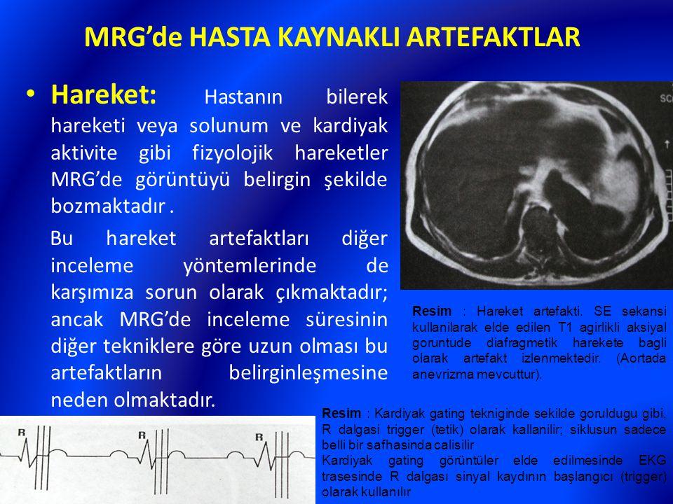 MRG'de HASTA KAYNAKLI ARTEFAKTLAR Hareket: Hastanın bilerek hareketi veya solunum ve kardiyak aktivite gibi fizyolojik hareketler MRG'de görüntüyü bel