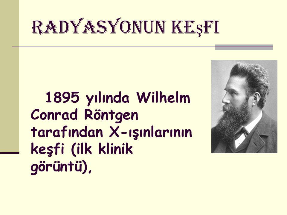 Radyasyonun Ke ş fi 1895 yılında Wilhelm Conrad Röntgen tarafından X-ışınlarının keşfi (ilk klinik görüntü),