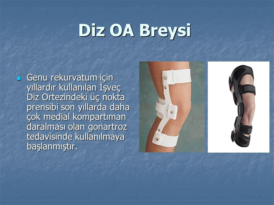 Diz OA Breysi Genu rekurvatum için yıllardır kullanılan İşveç Diz Ortezindeki üç nokta prensibi son yıllarda daha çok medial kompartıman daralması olan gonartroz tedavisinde kullanılmaya başlanmıştır.