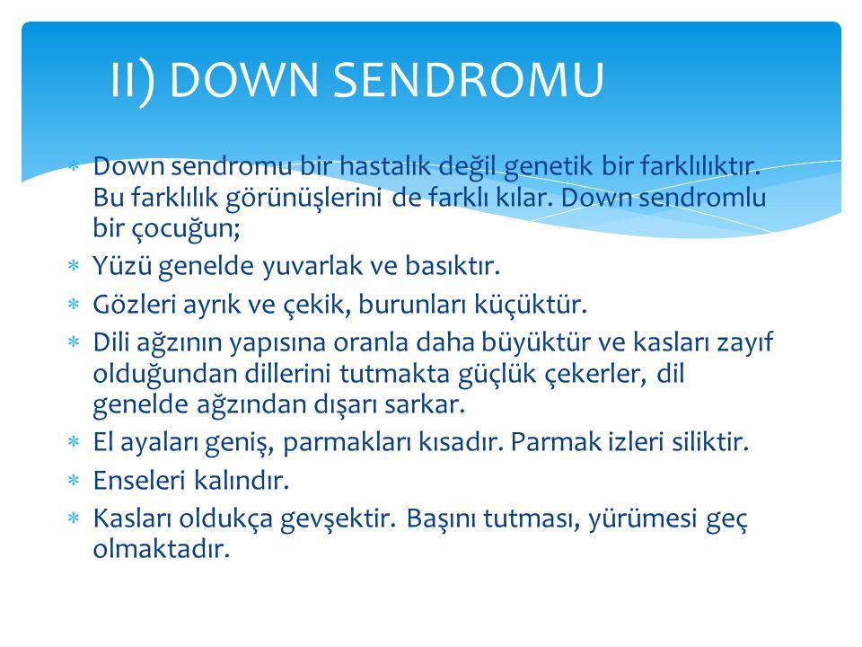  Down sendromu bir hastalık değil genetik bir farklılıktır. Bu farklılık görünüşlerini de farklı kılar. Down sendromlu bir çocuğun;  Yüzü genelde yu