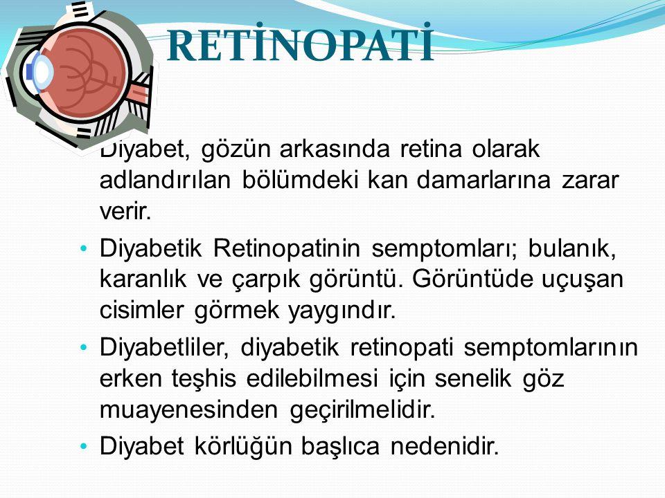 RETİNOPATİ Diyabet, gözün arkasında retina olarak adlandırılan bölümdeki kan damarlarına zarar verir. Diyabetik Retinopatinin semptomları; bulanık, ka