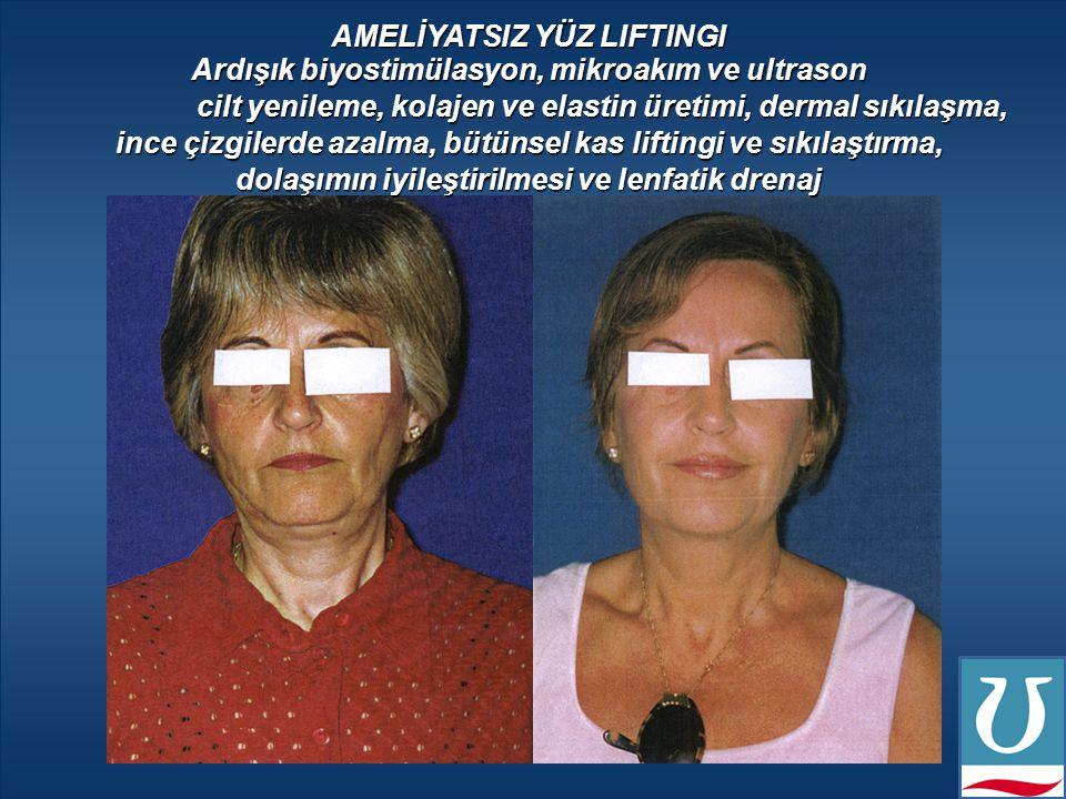 Futura Pro ile en son yüz felci olan bir müşterinin tedavisi Denmark 2005 August to September 2005 - 10 Uygulama Sonrası Ameliyatsız Yüz Liftingi & Lenfatik Drenaj Programı Mikroakım & Ultrason