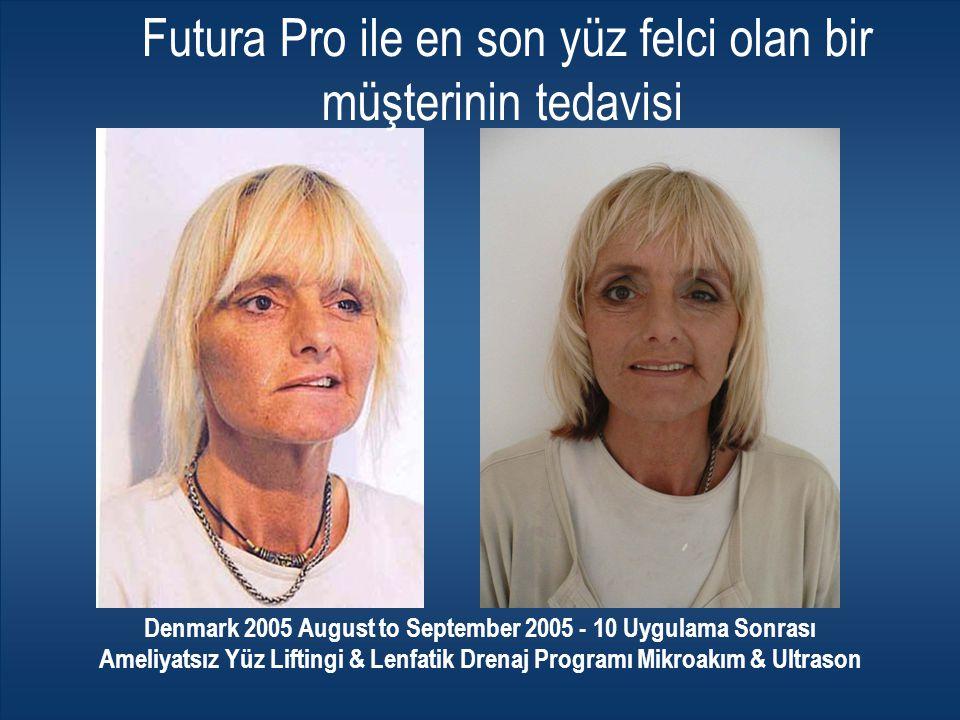 Futura Pro ile en son yüz felci olan bir müşterinin tedavisi Denmark 2005 August to September 2005 - 10 Uygulama Sonrası Ameliyatsız Yüz Liftingi & Le