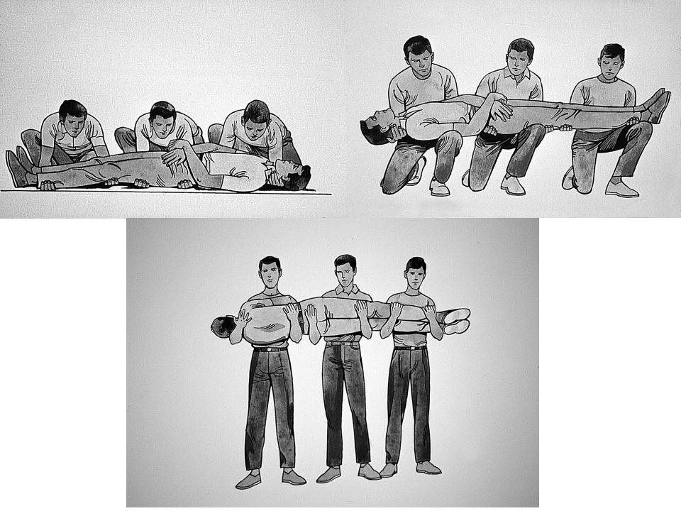 Sedye Üzerine Yerleştirme Teknikleri 1-Kaşık Tekniği: Başını ve omzunu tutan birinci ilkyardımcının komutu ile tüm ilkyardımcılar aynı anda hasta/yara