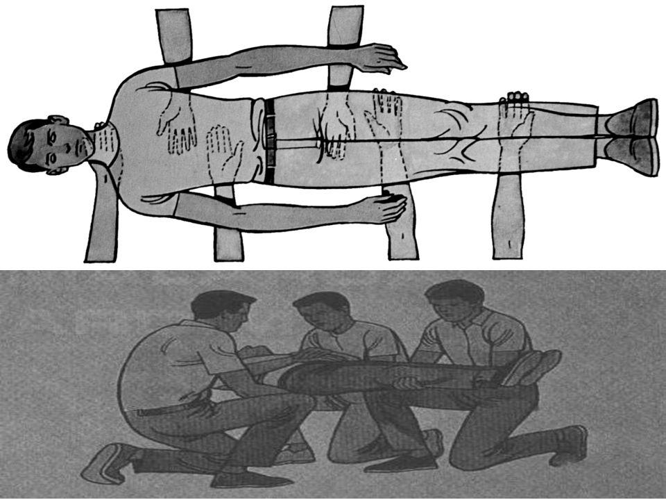Sedye Üzerine Yerleştirme Teknikleri 3-Karşılıklı Durarak Kaldırma Tekniği: Baş kısımdaki ilkyardımcılar kollarını baş- boyun eksenini koruyacak şekil