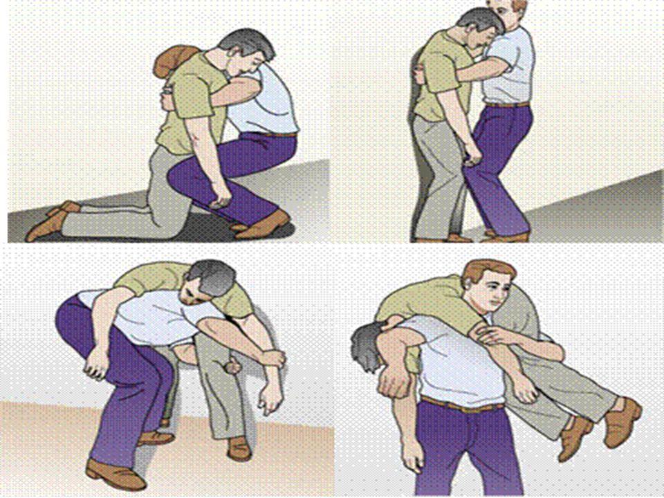 Kısa Mesafede Süratli Taşıma Teknikleri 4-Omuzda Taşıma (İtfaiyeci): Çömelerek sağ kolunu hasta/yaralının bacaklarının arasından geçirir, Hasta/yaralı
