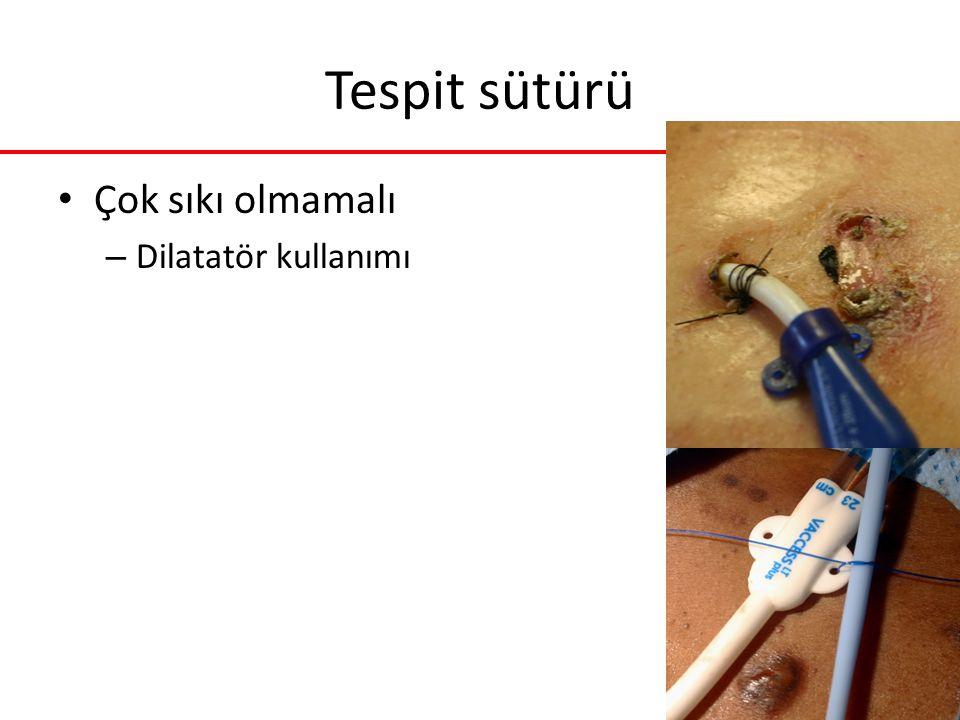 Tespit sütürü Çok sıkı olmamalı – Dilatatör kullanımı