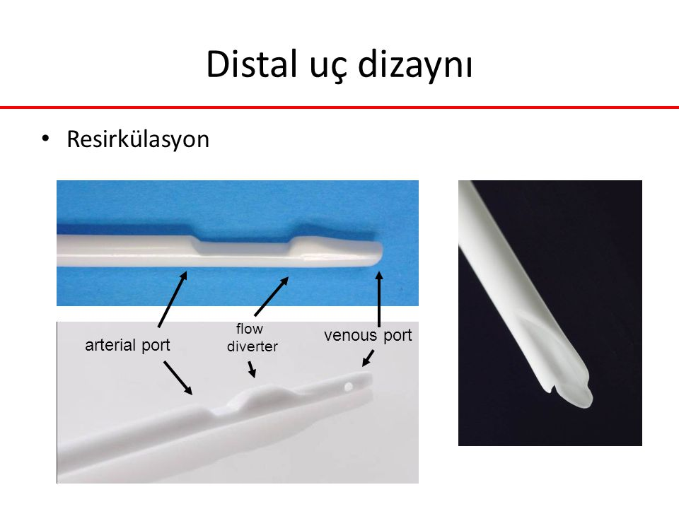 venous port arterial port flow diverter Distal uç dizaynı Resirkülasyon
