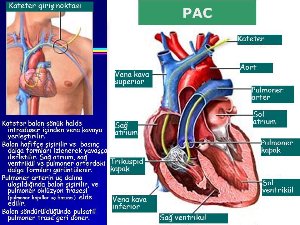 Kateter giriş noktası Pulmoner kapak Sol atrium Pulmoner arter Aort Kateter Vena kava superior Sağ ventrikül Triküspid kapak Sol ventrikül Vena kava i