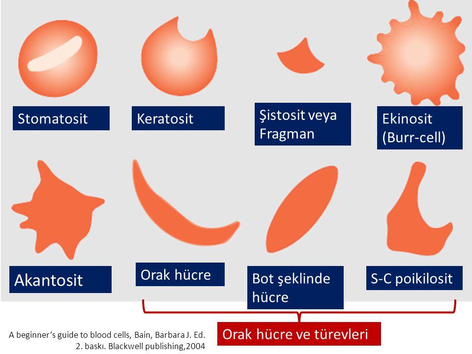 StomatositKeratosit Şistosit veya Fragman Ekinosit (Burr-cell) Akantosit Orak hücre Bot şeklinde hücre S-C poikilosit Orak hücre ve türevleri A beginner's guide to blood cells, Bain, Barbara J.