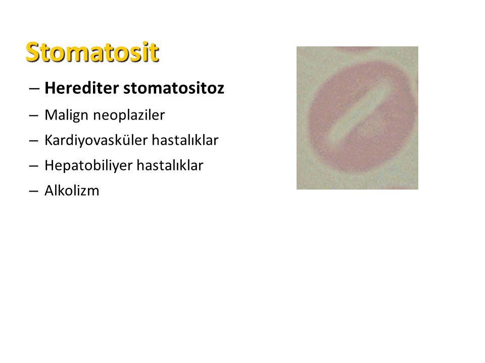 Stomatosit Stomatosit – Herediter stomatositoz – Malign neoplaziler – Kardiyovasküler hastalıklar – Hepatobiliyer hastalıklar – Alkolizm
