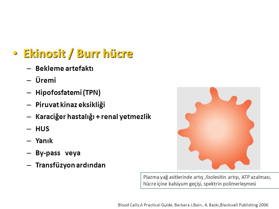 Ekinosit / Burr hücre Ekinosit / Burr hücre – Bekleme artefaktı – Üremi – Hipofosfatemi (TPN) – Piruvat kinaz eksikliği – Karaciğer hastalığı + renal yetmezlik – HUS – Yanık – By-pass veya – Transfüzyon ardından Plazma yağ asitlerinde artış,lisolesitin artışı, ATP azalması, hücre içine kalsiyum geçişi, spektrin polimerleşmesi Blood Cells.A Practical Guide.
