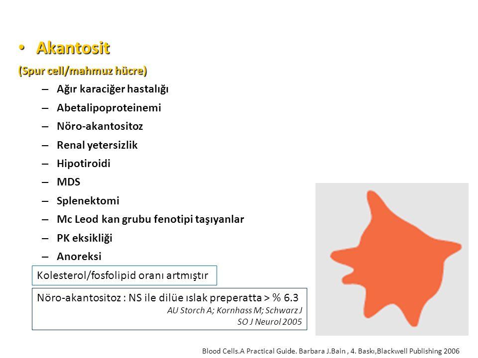 Akantosit Akantosit (Spur cell/mahmuz hücre) – Ağır karaciğer hastalığı – Abetalipoproteinemi – Nöro-akantositoz – Renal yetersizlik – Hipotiroidi – MDS – Splenektomi – Mc Leod kan grubu fenotipi taşıyanlar – PK eksikliği – Anoreksi Kolesterol/fosfolipid oranı artmıştır Blood Cells.A Practical Guide.