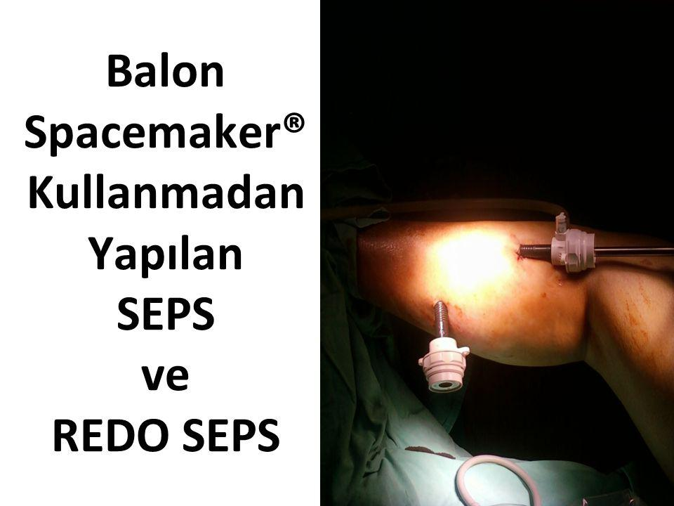 Balon Spacemaker® Kullanmadan Yapılan SEPS ve REDO SEPS