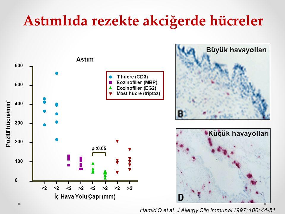 Küçük havayolları Büyük havayolları Hamid Q et al. J Allergy Clin Immunol 1997; 100: 44-51 600 500 400 300 200 100 0 <2>2<2>2<2>2<2>2 İç Hava Yolu Çap