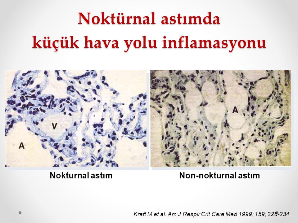 Noktürnal astımda küçük hava yolu inflamasyonu Nokturnal astımNon-nokturnal astım Kraft M et al. Am J Respir Crit Care Med 1999; 159; 228-234