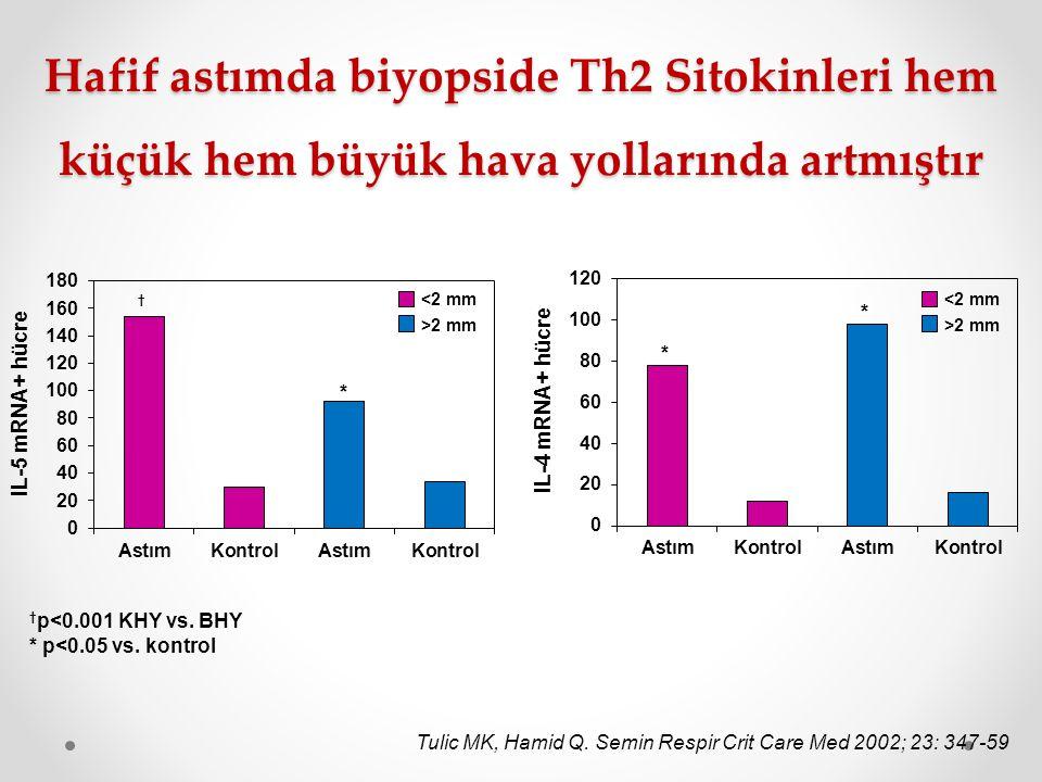 Hafif astımda biyopside Th2 Sitokinleri hem küçük hem büyük hava yollarında artmıştır <2 mm >2 mm Tulic MK, Hamid Q. Semin Respir Crit Care Med 2002;