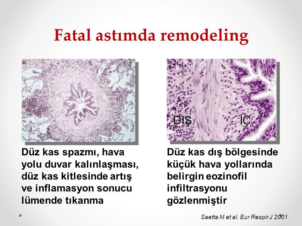 Fatal astımda remodeling Saetta M et al. Eur Respir J 2001 Düz kas spazmı, hava yolu duvar kalınlaşması, düz kas kitlesinde artış ve inflamasyon sonuc
