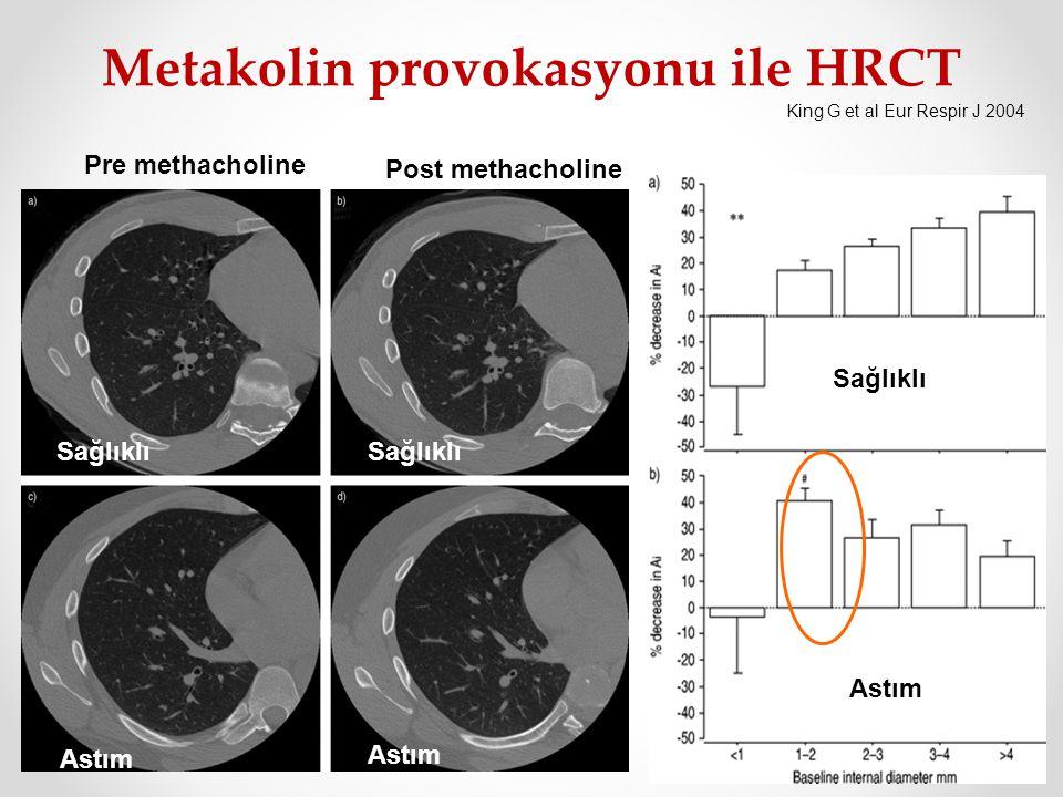 Pre methacholine Post methacholine Sağlıklı Astım King G et al Eur Respir J 2004 Metakolin provokasyonu ile HRCT Sağlıklı Astım