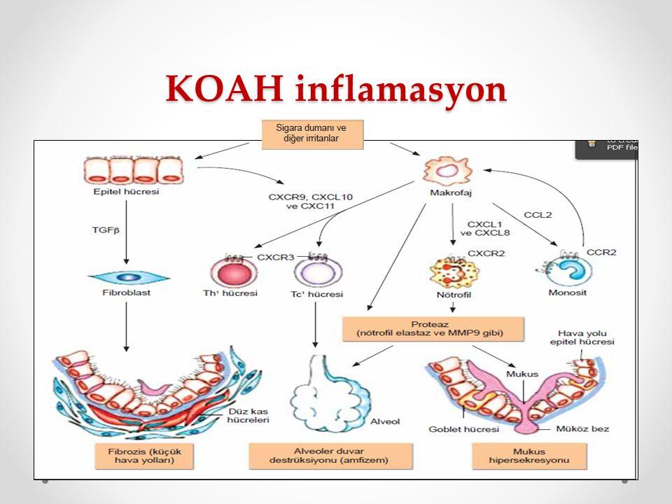KOAH inflamasyon