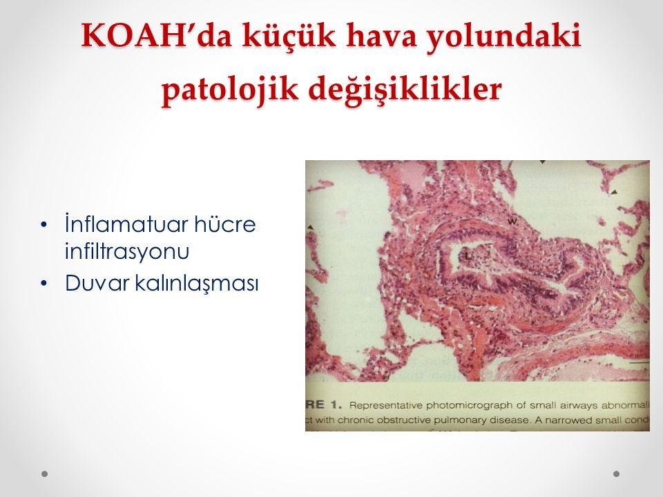 KOAH'da küçük hava yolundaki patolojik değişiklikler İnflamatuar hücre infiltrasyonu Duvar kalınlaşması