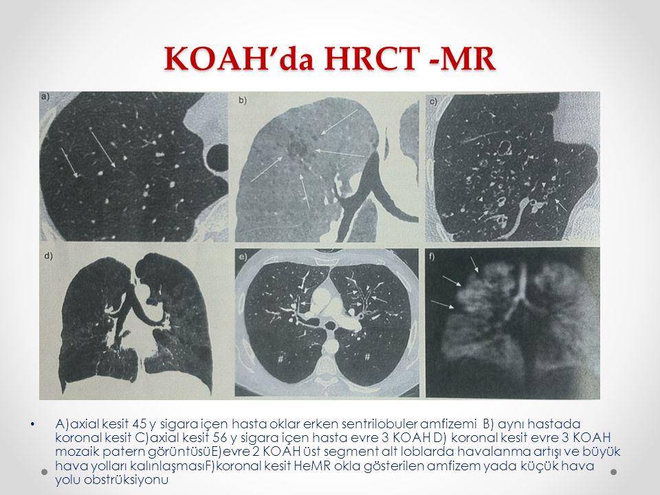 KOAH'da HRCT -MR A)axial kesit 45 y sigara içen hasta oklar erken sentrilobuler amfizemi B) aynı hastada koronal kesit C)axial kesit 56 y sigara içen