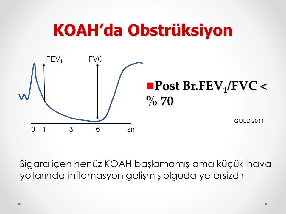 Post Br.FEV 1 /FVC < % 70 Post Br.FEV 1 /FVC < % 70 KOAH'da Obstrüksiyon GOLD 2011 FEV 1 FVC 01 36sn Sigara içen henüz KOAH başlamamış ama küçük hava