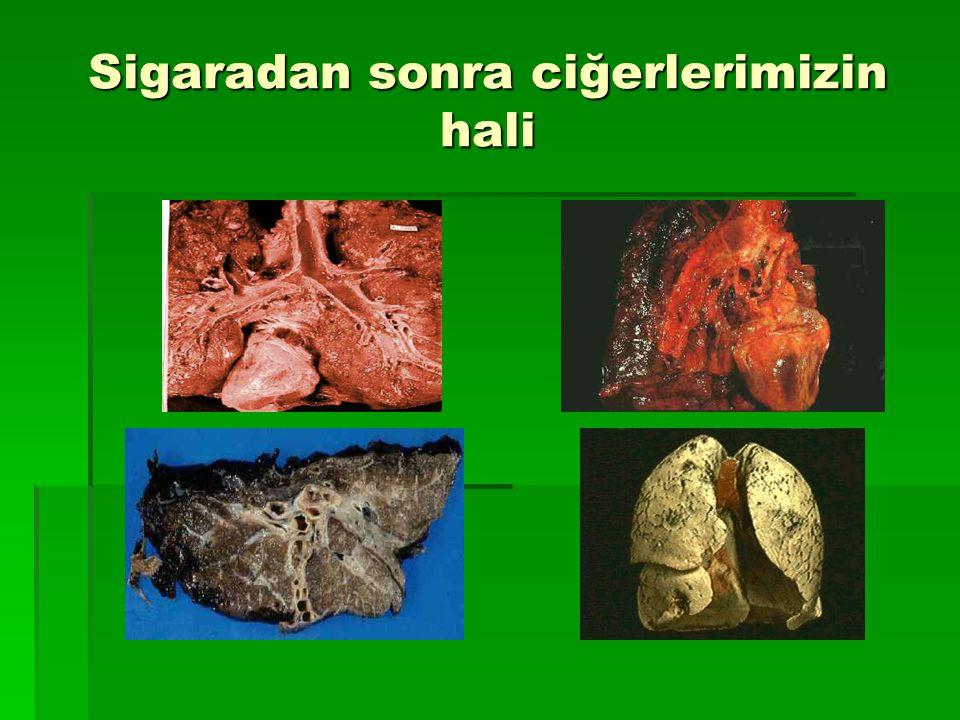 Sigara içmek cildi yaşlandırır…