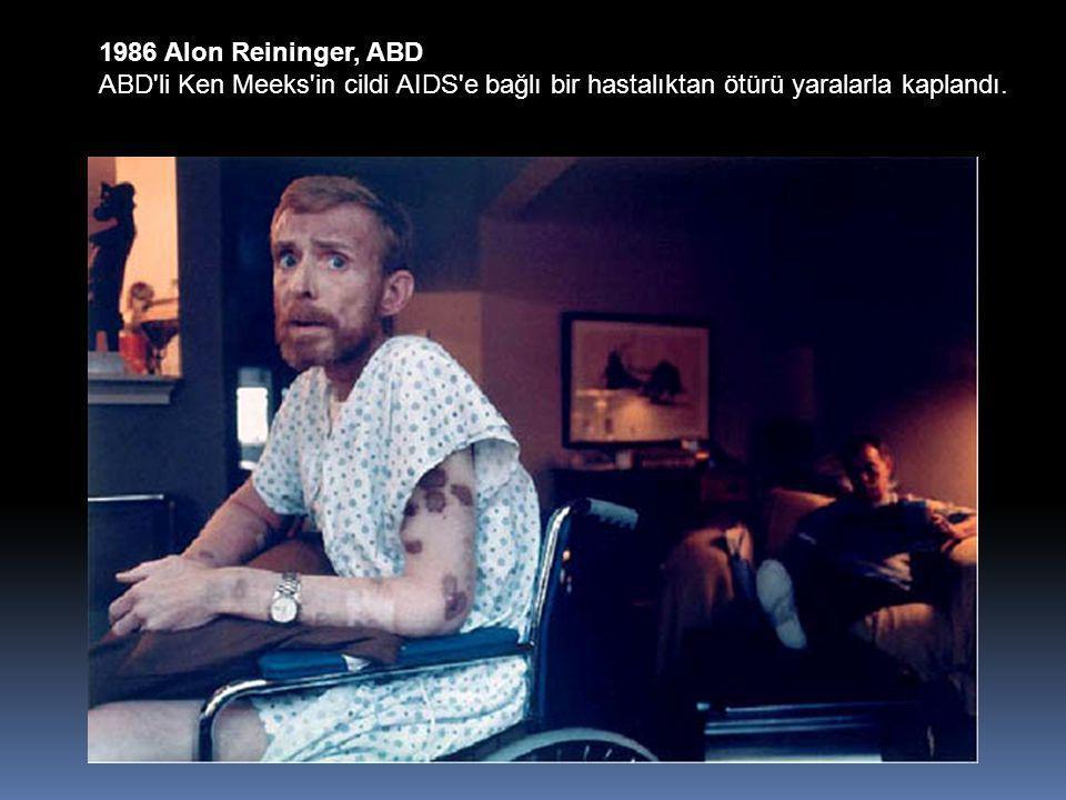 1986 Alon Reininger, ABD ABD li Ken Meeks in cildi AIDS e bağlı bir hastalıktan ötürü yaralarla kaplandı.
