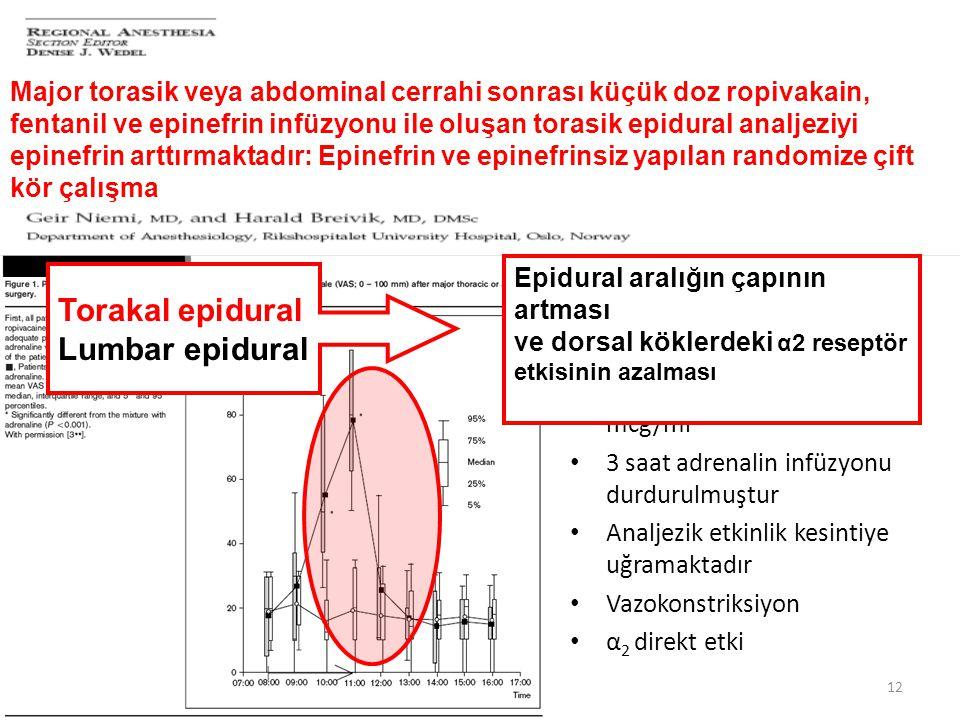 12 Torasik epidural analjezi Ropivakain 1 mg/kg, Fentanil 2 mcg/ml, Adrenalin 2 mcg/ml 3 saat adrenalin infüzyonu durdurulmuştur Analjezik etkinlik ke