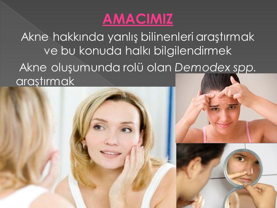 AMACIMIZ Akne hakkında yanlış bilinenleri araştırmak ve bu konuda halkı bilgilendirmek Akne oluşumunda rolü olan Demodex spp.