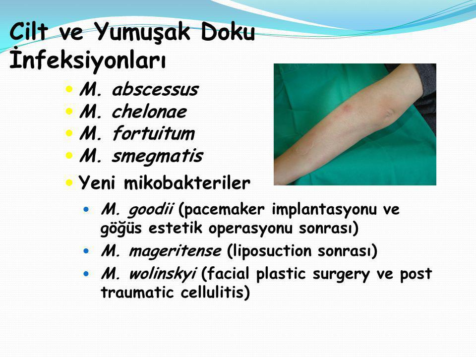 Cilt ve Yumuşak Doku İnfeksiyonları M. abscessus M. chelonae M. fortuitum M. smegmatis Yeni mikobakteriler M. goodii (pacemaker implantasyonu ve göğüs