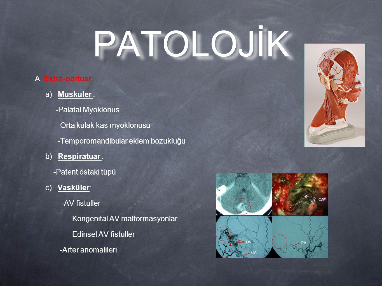 PATOLOJİK A. Extra-odituar: a) Muskuler : -Palatal Myoklonus -Orta kulak kas myoklonusu -Temporomandibular eklem bozukluğu b) Respiratuar : -Patent ös