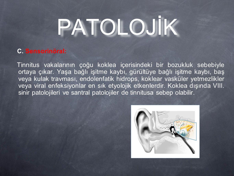 C. Sensorinöral: Tinnitus vakalarının çoğu koklea içerisindeki bir bozukluk sebebiyle ortaya çıkar. Yaşa bağlı işitme kaybı, gürültüye bağlı işitme ka