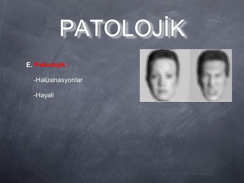 E. Psikolojik : -Halüsinasyonlar -Hayali PATOLOJİK