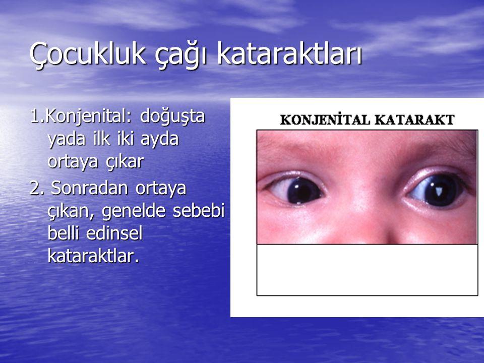 Çocukluk çağı kataraktları 1.Konjenital: doğuşta yada ilk iki ayda ortaya çıkar 2. Sonradan ortaya çıkan, genelde sebebi belli edinsel kataraktlar.